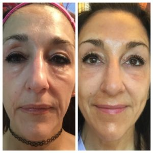 before-and-after-eyes-viva-6-sessions-2