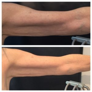 before-and-after-venus-legacy-10-sessions-skin-tightening-arms