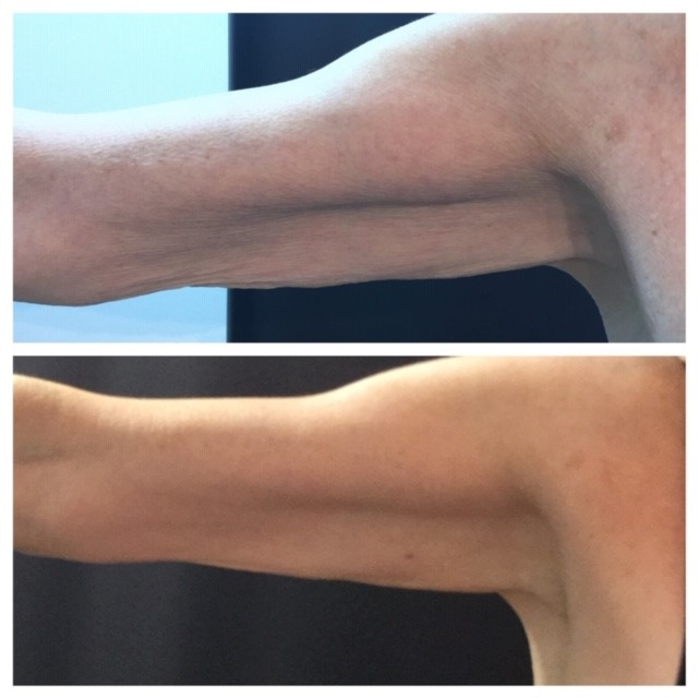Prism Med Spa Before And Afters Prism Med Spa
