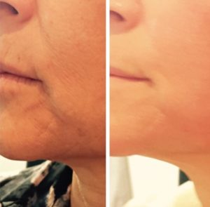 before-and-after-venus-legacy-10-sessions-skin-tightening-face