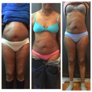 before-and-after-venus-legacy-10-sessions-jpg3