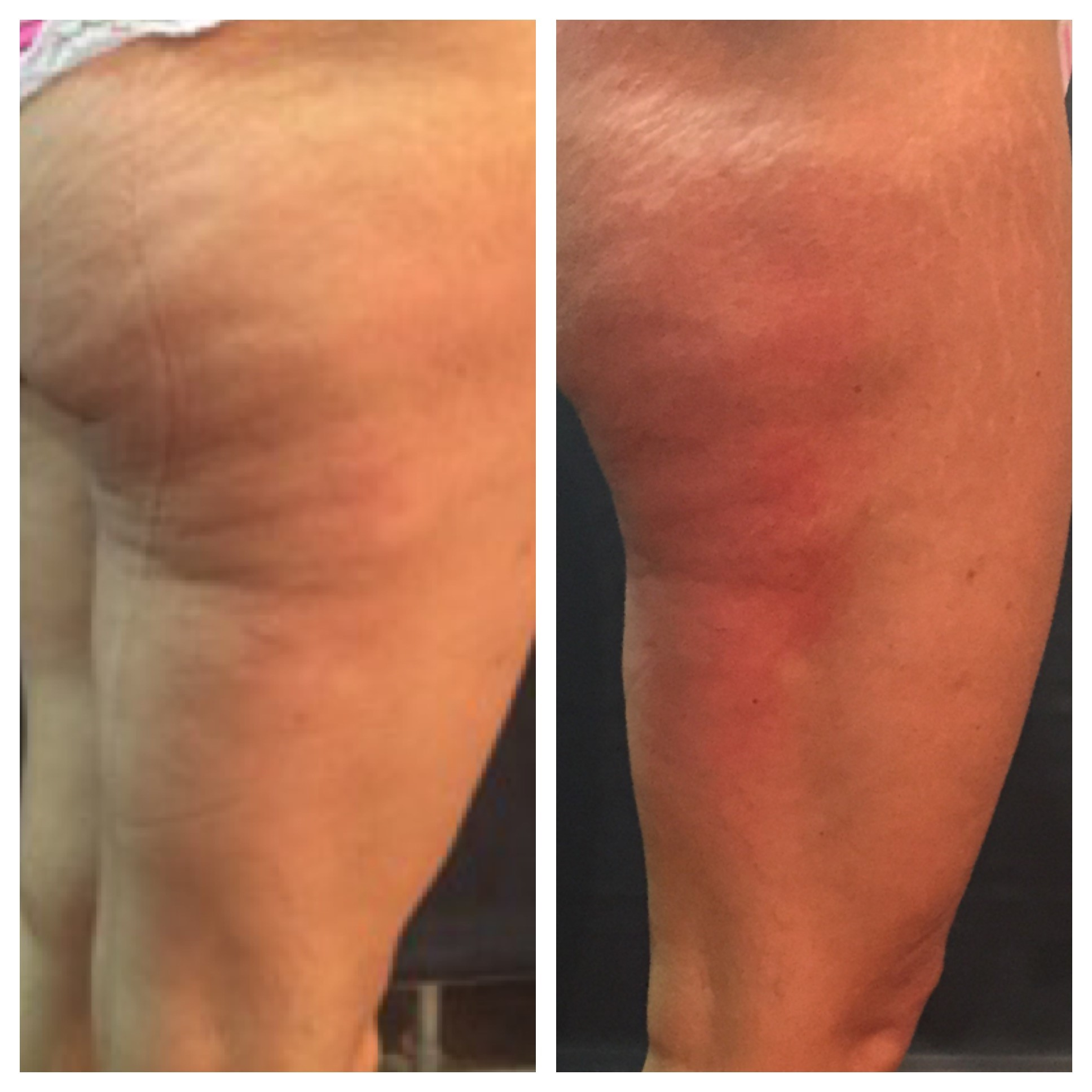 Prism Med Spa Before And After Venus Legacy Cellulite Reduction
