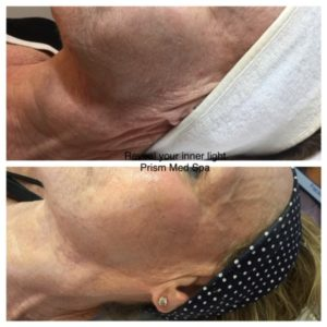 before-and-after-venus-viva-skin-resurfacing-rf-fractional-neck-jpg