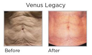 Venus Legacy Before and After