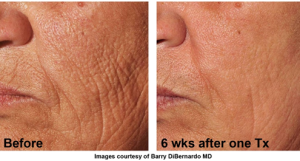 Results of Venus Viva Face Lift of the Future